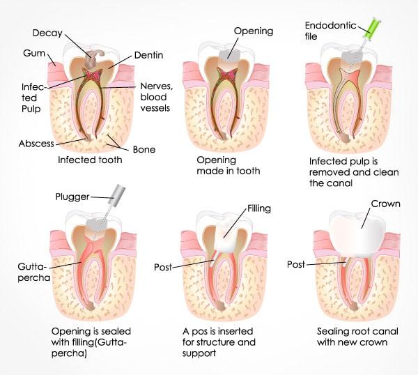 مراحل درمان ریشه دندان