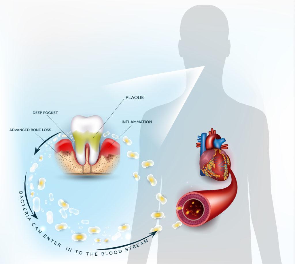 اهمیت رسیدگی به عفونت دندان